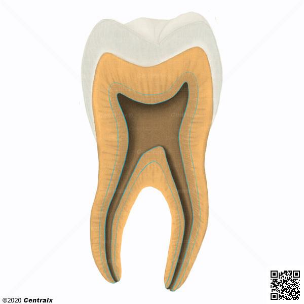 Dentina Secundária