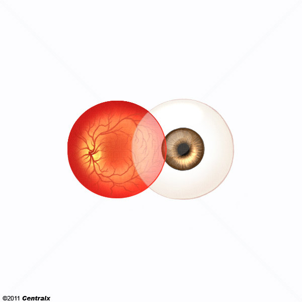 Segmento Anterior do Olho