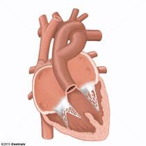 Tronco Arterial
