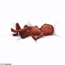 Feto Abortado