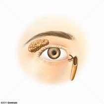 Aparelho Lacrimal