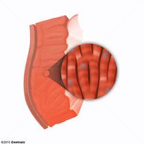 Miócitos Cardíacos