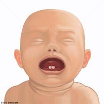 Dentes Natais