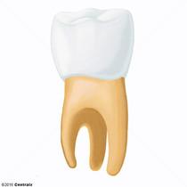 Dente Serotino