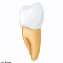 Dente Premolar