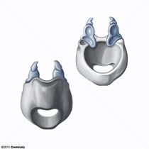 Cartilagem Aritenóide