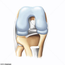 Cartilagem Hialina