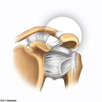 Articulação Acromioclavicular