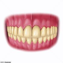Arcada Ósseo-Dentária