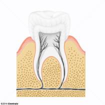 Alvéolo Dental