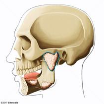 Glândula Parótida
