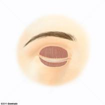 Glândulas Tarsais